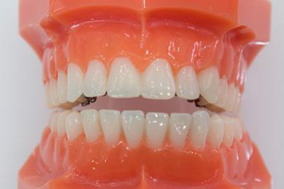 歯 列 矯正 種類